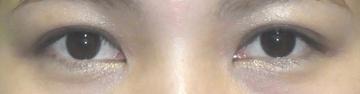 ドクター松井クリニックの目・二重の整形の症例写真[アフター]