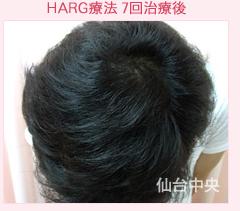 の薄毛治療・AGA・発毛の症例写真[アフター]