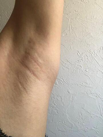 秋葉原フロンティアクリニックのわきが手術・多汗症治療の症例写真[アフター]