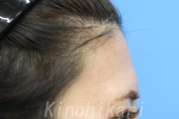 樹のひかり 形成外科・皮ふ科の顔の整形(輪郭・顎の整形)の症例写真[ビフォー]