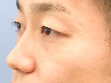 の目元の整形、くま治療の症例写真[アフター]
