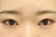 東京イセアクリニック渋谷院の目元の整形、くま治療の症例写真[ビフォー]