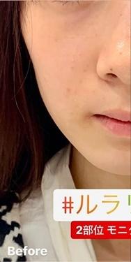 ルラ美容クリニック 高田馬場院の顔のしわ・たるみの整形(リフトアップ手術)の症例写真[ビフォー]