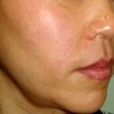佐井泌尿器科・皮フ科クリニックのシミ治療(シミ取り)・肝斑・毛穴治療の症例写真[アフター]