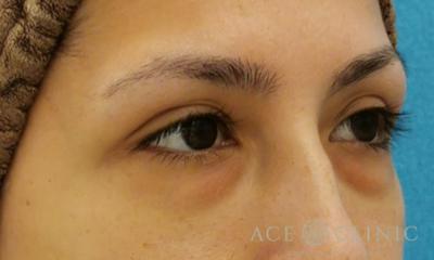 目の下のクマ・たるみ取り 経結膜ハムラ法の症例写真[ビフォー]