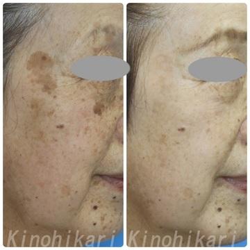 樹のひかり 形成外科・皮ふ科のシミ取り・肝斑・毛穴治療の症例写真