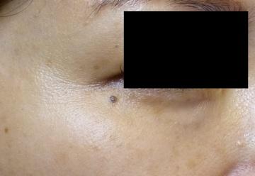 さやか美容クリニック・町田のホクロ除去・あざ治療・イボ治療の症例写真[ビフォー]