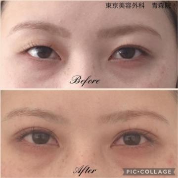 東京美容外科 青森院の目・二重整形の症例写真