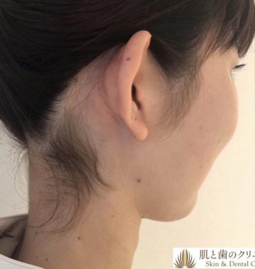 肌と歯のクリニック 東京ベイ幕張の医療レーザー脱毛の症例写真[ビフォー]