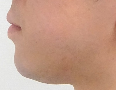 ラインフィール 顎 1ccの症例写真[アフター]