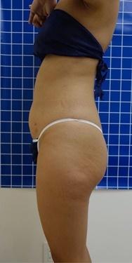 SELECT CLINIC (セレクトクリニック)の痩身、メディカルダイエットの症例写真[アフター]