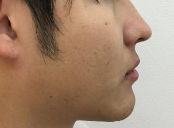 福岡博多駅前通中央クリニックの医療レーザー脱毛の症例写真[アフター]