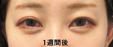 湘南美容クリニック 品川院の目元の整形、くま治療の症例写真[アフター]