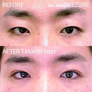 クイックコスメティーク・ダブル/術後1ヶ月の症例写真
