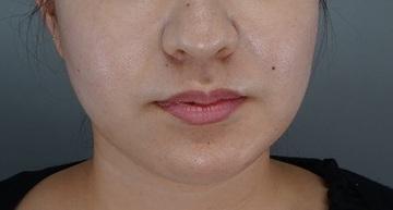 TCB東京中央美容外科の顔のしわ・たるみの整形(リフトアップ手術)の症例写真[アフター]