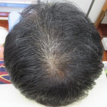 はなふさ皮膚科の薄毛治療・AGA・発毛の症例写真[ビフォー]