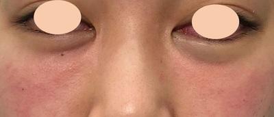 【目の下のクマ治療】目元症例数年間1000件以上の症例写真[アフター]