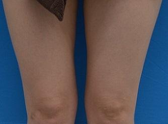 TCB東京中央美容外科の痩身、メディカルダイエットの症例写真[アフター]