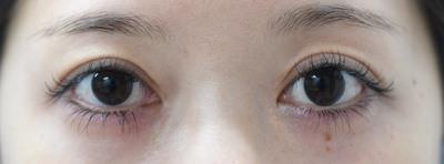 二重術切開と目頭切開の組み合わせで目を最大限大きく見せるの症例写真[アフター]