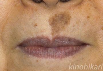 樹のひかり形成外科・皮ふ科のシミ治療(シミ取り)・肝斑・毛穴治療の症例写真[ビフォー]