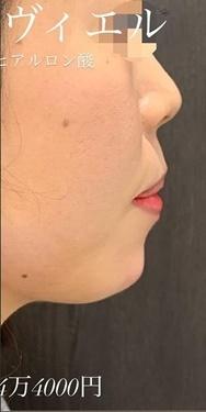 ルラ美容クリニックの輪郭・顎の整形の症例写真[アフター]