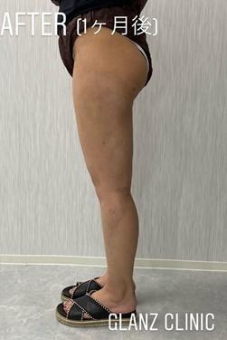 GLANZ CLINIC (グランツクリニック)の脂肪吸引の症例写真[アフター]