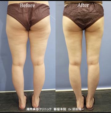 湘南美容クリニック新宿本院の脂肪吸引の症例写真
