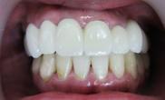 ザ・ホワイトデンタルクリニックの審美歯科の症例写真[アフター]