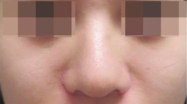 小鼻縮小(鼻翼縮小・あぐら鼻改善)の治療 (鼻尖縮小術、小鼻縮小術の ...