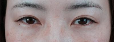 グランドループ法(二重埋没法)術後1ケ月 女性 30代の症例写真[ビフォー]