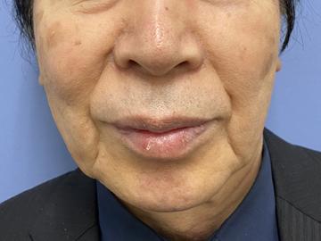 湘南美容クリニック 銀座院の顔のしわ・たるみの整形の症例写真[ビフォー]