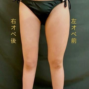 東京ミッドクリニックの脂肪吸引の症例写真