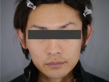 メディエスクリニックの医療レーザー脱毛の症例写真[ビフォー]