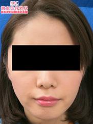 湘南美容クリニック銀座院の痩身、メディカルダイエットの症例写真[アフター]