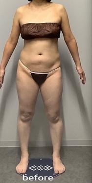 エムスカルプト お腹・ヒップ 各11回の症例写真[ビフォー]