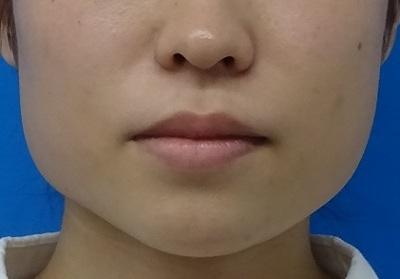 新脂肪溶解注射(BNLS)パーフェクト 両頬10cc×3回の症例写真[ビフォー]