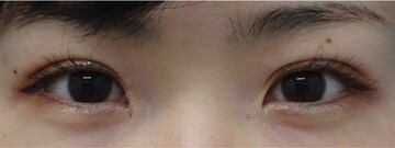 みらいビューティークリニック和歌山の目・二重整形の症例写真[アフター]