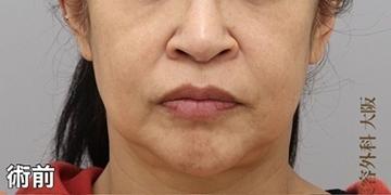 銀座みゆき通り美容外科 大阪院の顔のしわ・たるみの整形(リフトアップ手術)の症例写真[ビフォー]
