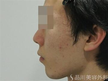 品川美容外科のニキビ治療・ニキビ跡の治療の症例写真[アフター]
