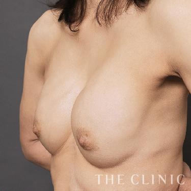 カプセル拘縮のセルチャー豊胸(培養幹細胞豊胸)の症例写真[ビフォー]