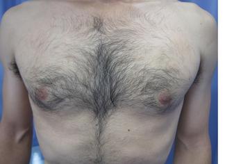 鹿児島三井中央クリニックの医療レーザー脱毛の症例写真[ビフォー]