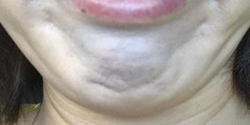 皮フ科 かわさきかおりクリニックの顔のしわ・たるみの整形(リフトアップ手術)の症例写真[ビフォー]