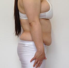 の痩身、メディカルダイエットの症例写真[ビフォー]