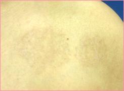 城本クリニックのタトゥー除去(刺青・入れ墨を消す治療)の症例写真[アフター]