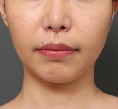 人中短縮&口角挙上の症例写真[アフター]
