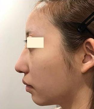 ゴアテックス、鼻骨骨切、鼻中隔延長の症例写真[アフター]