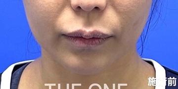 THE ONE.の顔のしわ・たるみの整形の症例写真[ビフォー]