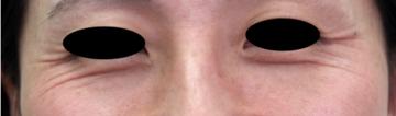 熊本かよこクリニックの顔のしわ・たるみの整形(リフトアップ手術)の症例写真[ビフォー]