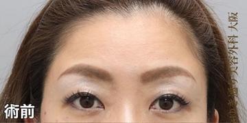 銀座みゆき通り美容外科 大阪院の顔の整形(輪郭・顎の整形)の症例写真[ビフォー]