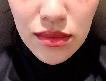 CHRISTINA clinic GINZA (クリスティーナクリニック銀座)の顔の整形(輪郭・顎の整形)の症例写真[アフター]